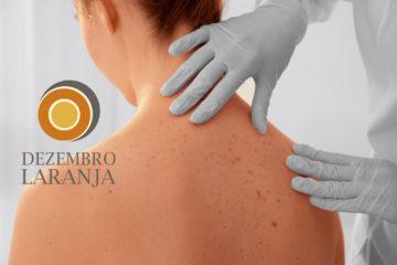 Dezembro Laranja: campanha de combate e prevenção ao câncer de pele
